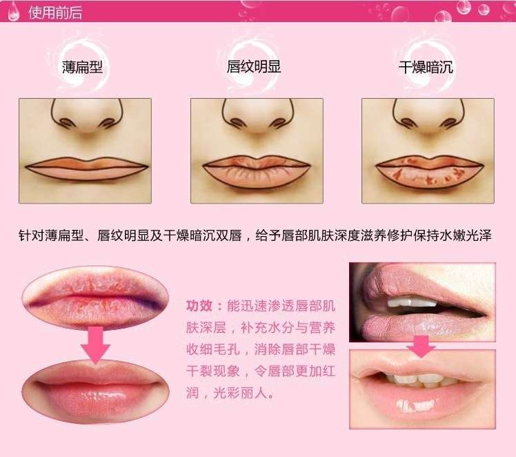 5pcs Hot Selling Lip Mask Crystal Collagen Lips Care Pads Lip Smackers Face Care zhKK (Color: Transparent)-7